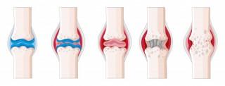 artritis-reumatoide-cuerpo-humano-ilustracion_1308-1826