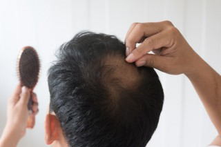 hombres-estan-preocupados-perdida-cabello_40919-1002