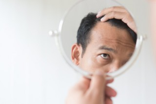 hombres-estan-preocupados-perdida-cabello_40919-1001