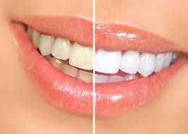 Posibles causas de los dientes manchados